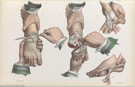 1841 textbook image showing amputations